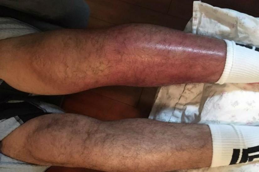perna-de-gilbert-melendez-ficou-muito-machucada-apos-luta-com-jeremy-stephens-1505143000029_v2_900x506-825x550.jpg